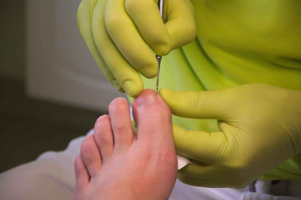 mclaren vale podiatry foot care image